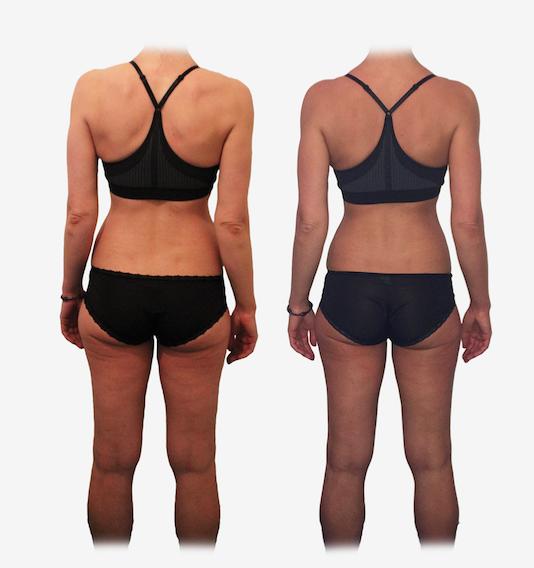 Anette – 40, fit og fantastisk!